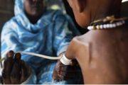 Estudio revela relación causa-efecto entre malnutrición y flora intestinal