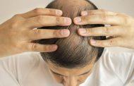 Lo que debes saber sobre la caída del cabello