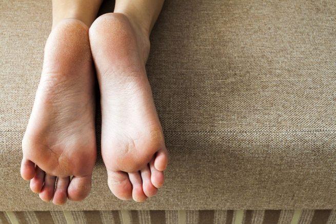 Consejos para eliminar los callos de los pies