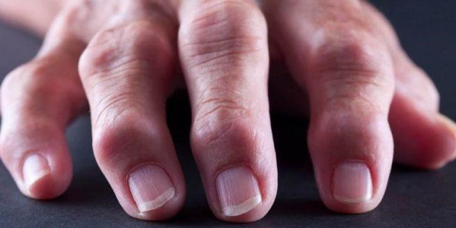 Artrosis o artritis, ¿cuál es la diferencia?