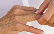 Qué es la artritis reumatoide, tratamiento y ejercicios