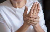 ¿Qué tratamientos hay para la artritis reumatoide?