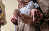 Inauguran 36 oficinas de registro civil de nacimiento en hospitales y clínicas del país