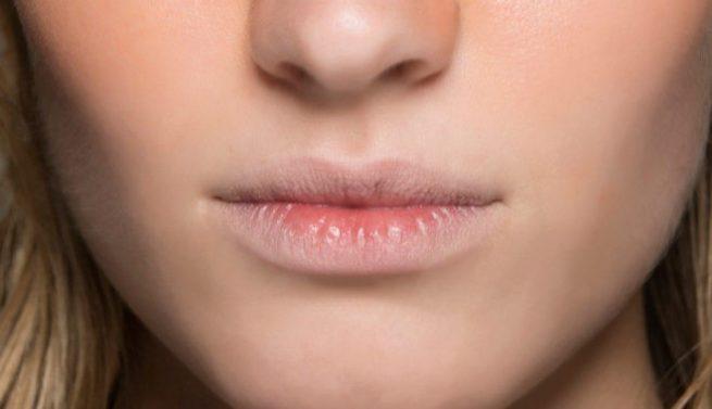 Por qué se agrietan los labios y cómo evitarlo