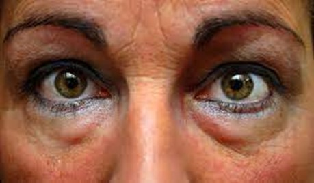 Bolsas debajo de los ojos: cómo deshacerse de ellas
